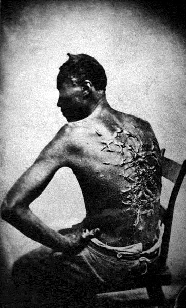 Zdjęcie niewolnika z Missisipi z 1863 roku.