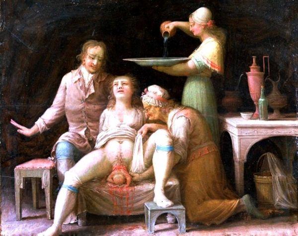 Poród na francuskiej ilustracji z XVIII wieku.